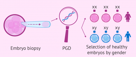 Process of PGD for gender selection