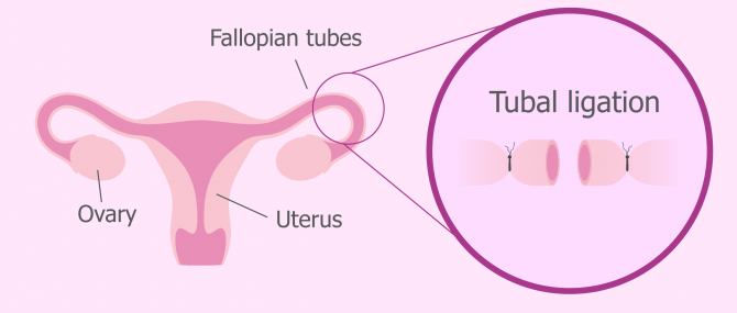 Surgery for tubal sterilization