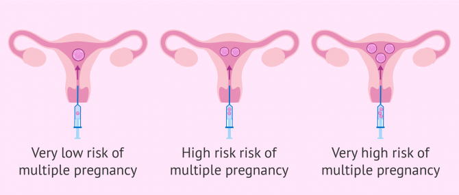 Chances of twins with 1, 2 or 3 embryo transfer