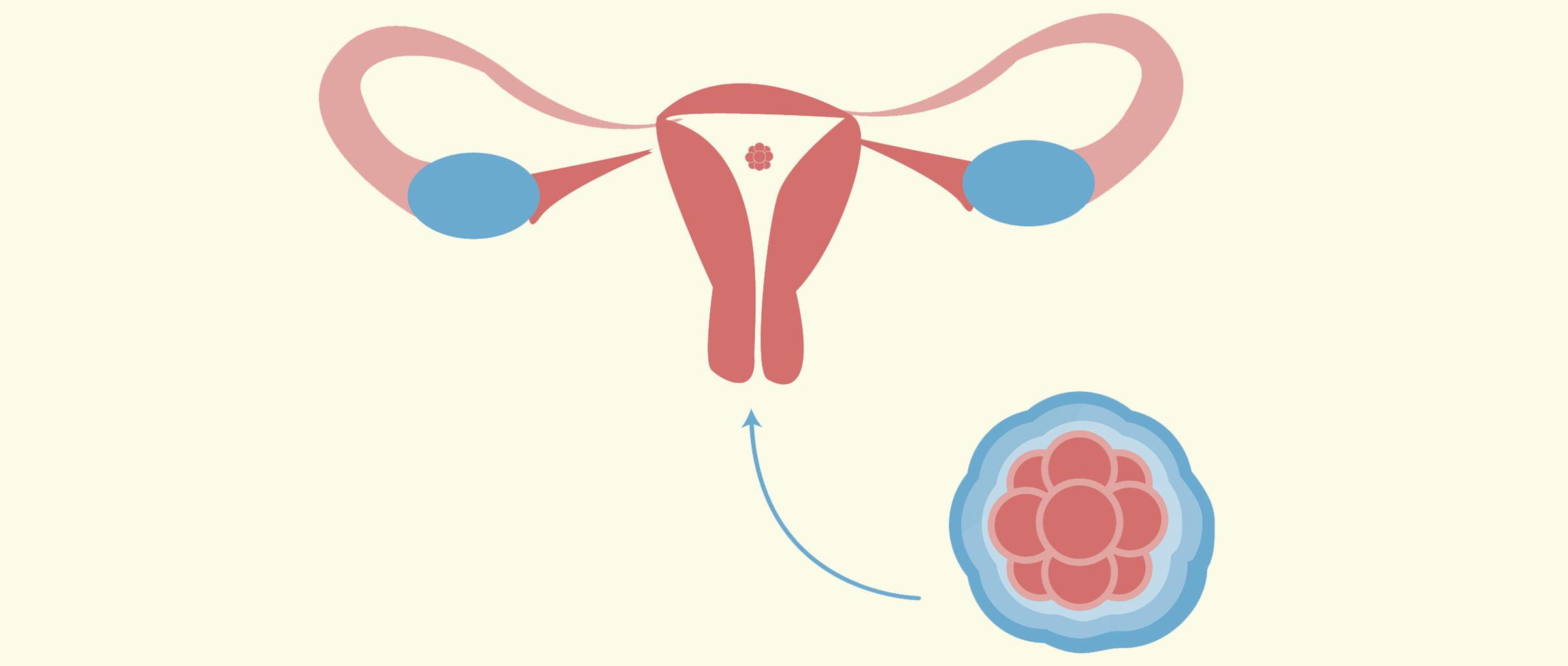 Embryo transfer to the uterus