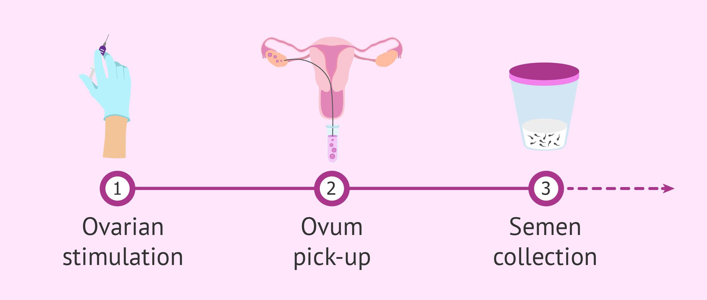First IVF basic steps