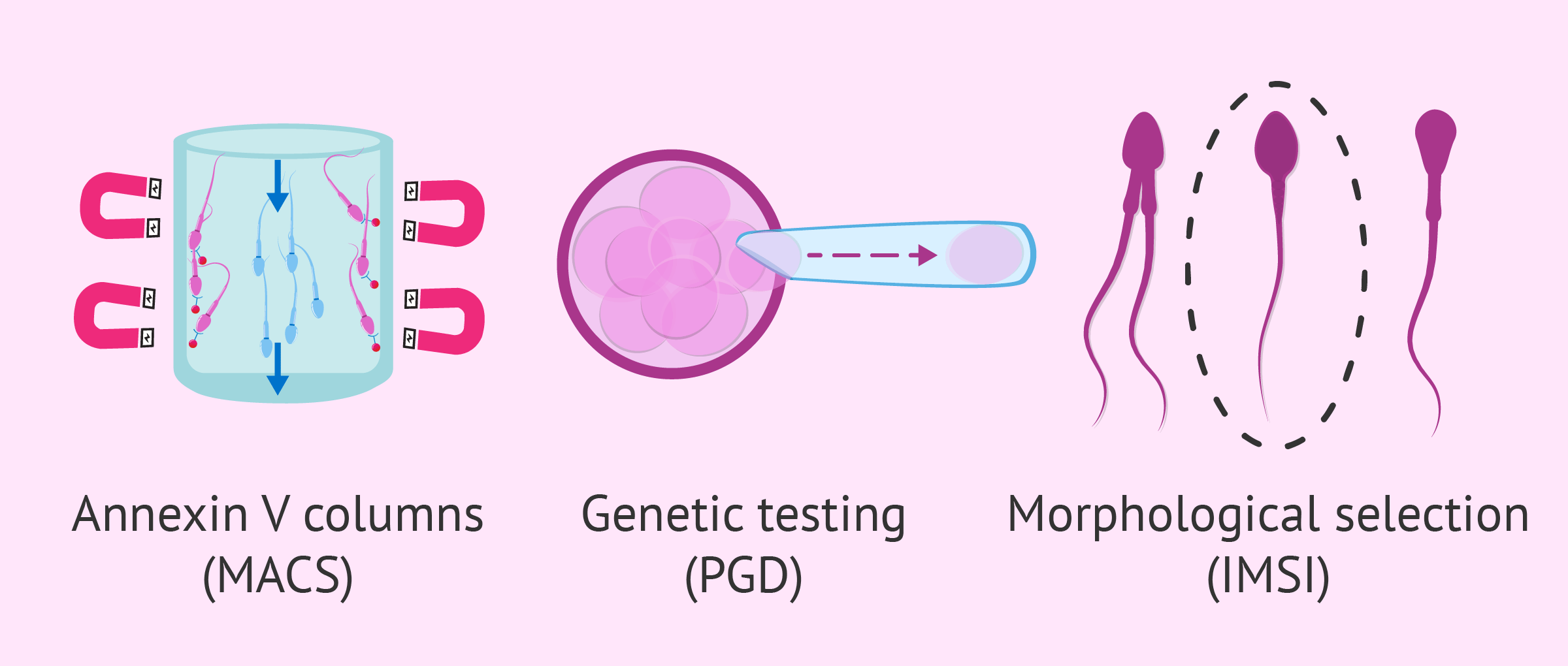 Additional techniques in IVF ICSI procedures