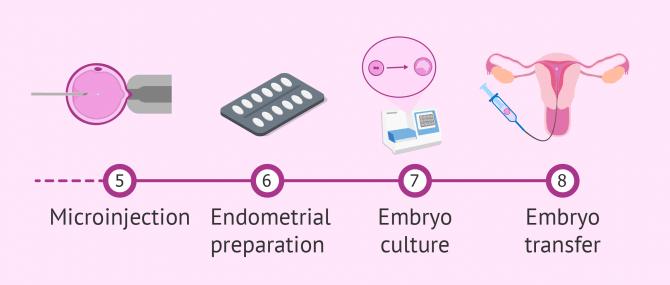 Phases of ICSI procedure