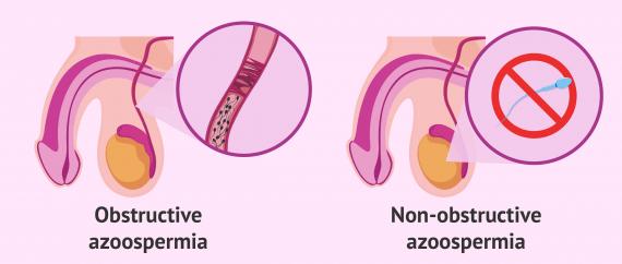 Types of azoospermia