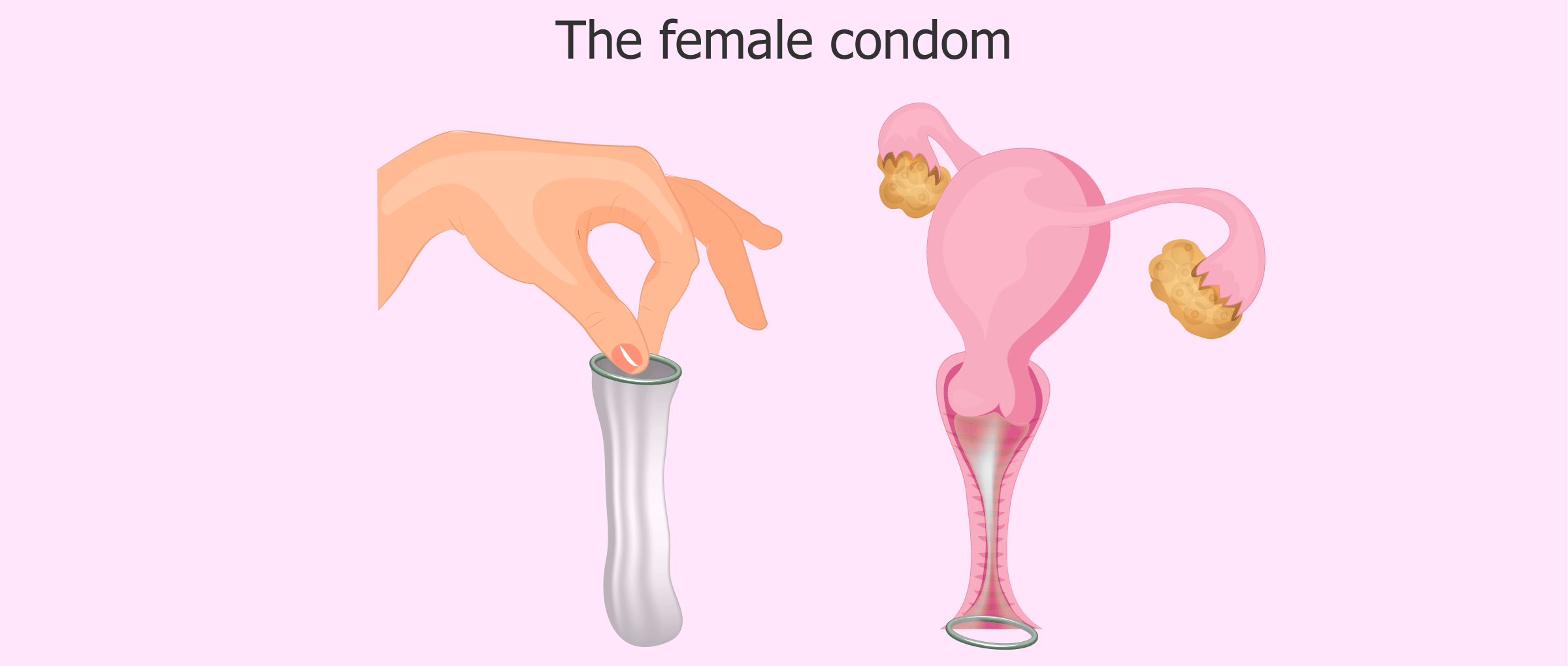 How to use the female condom