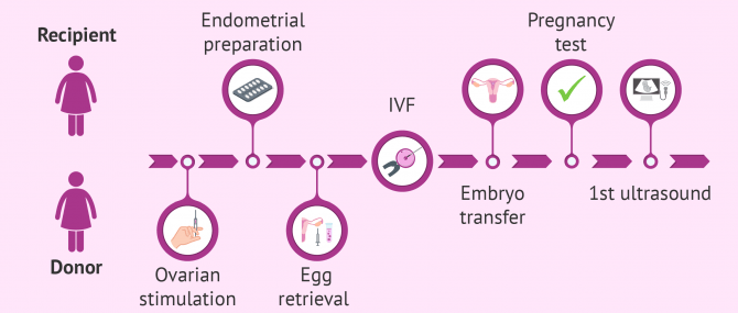 Egg donation process for recipients step by step