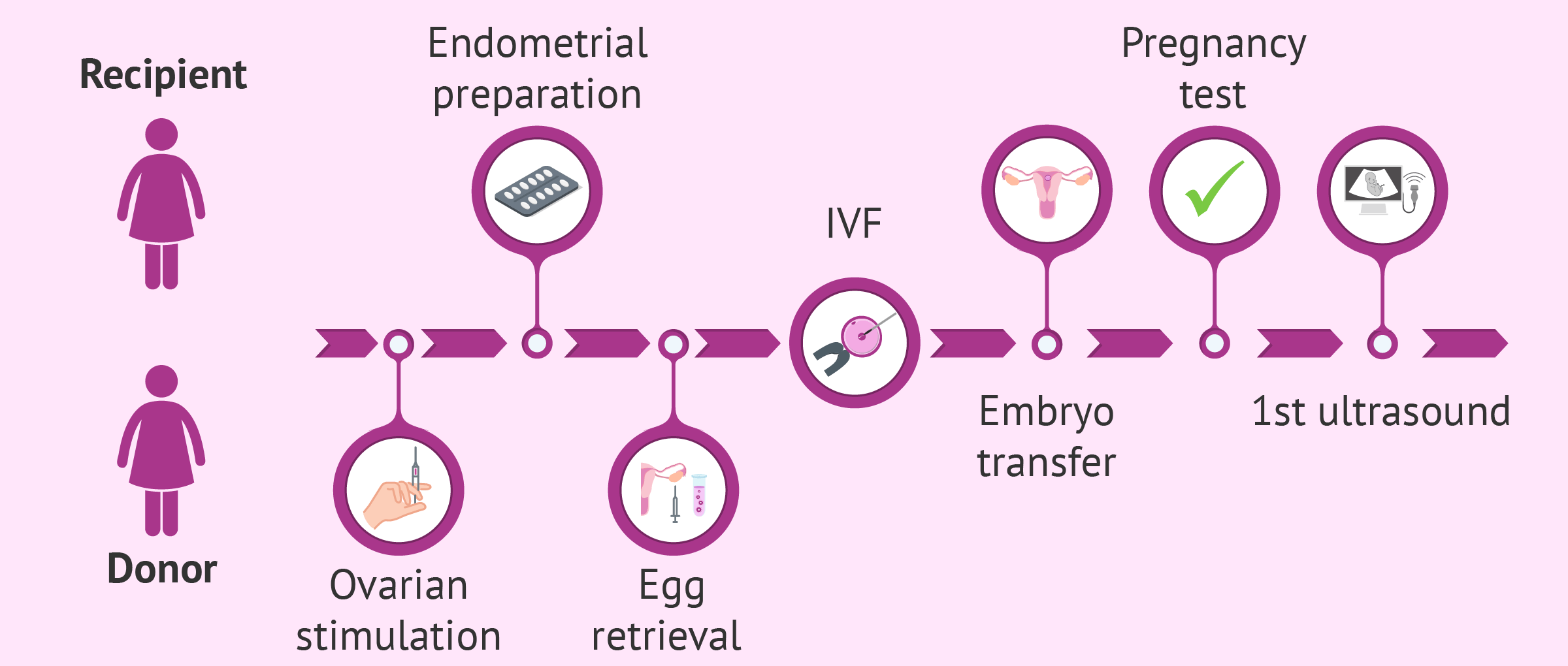 Imagen: Egg donation process for recipients step by step