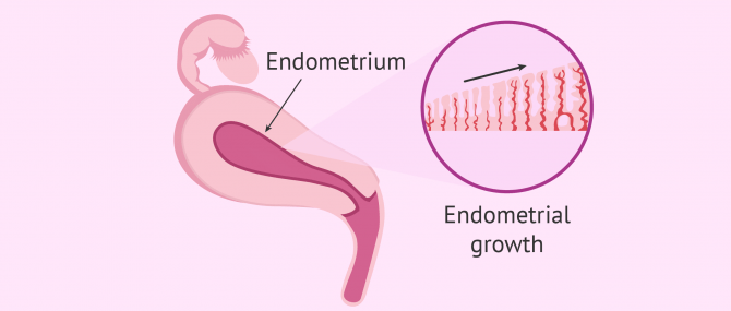 Preparation of the egg donor recipient's endometrial lining