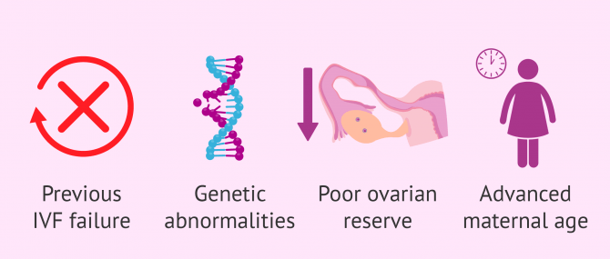 When to use donor eggs in IVF