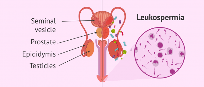 Genital tract infection and leukospermia