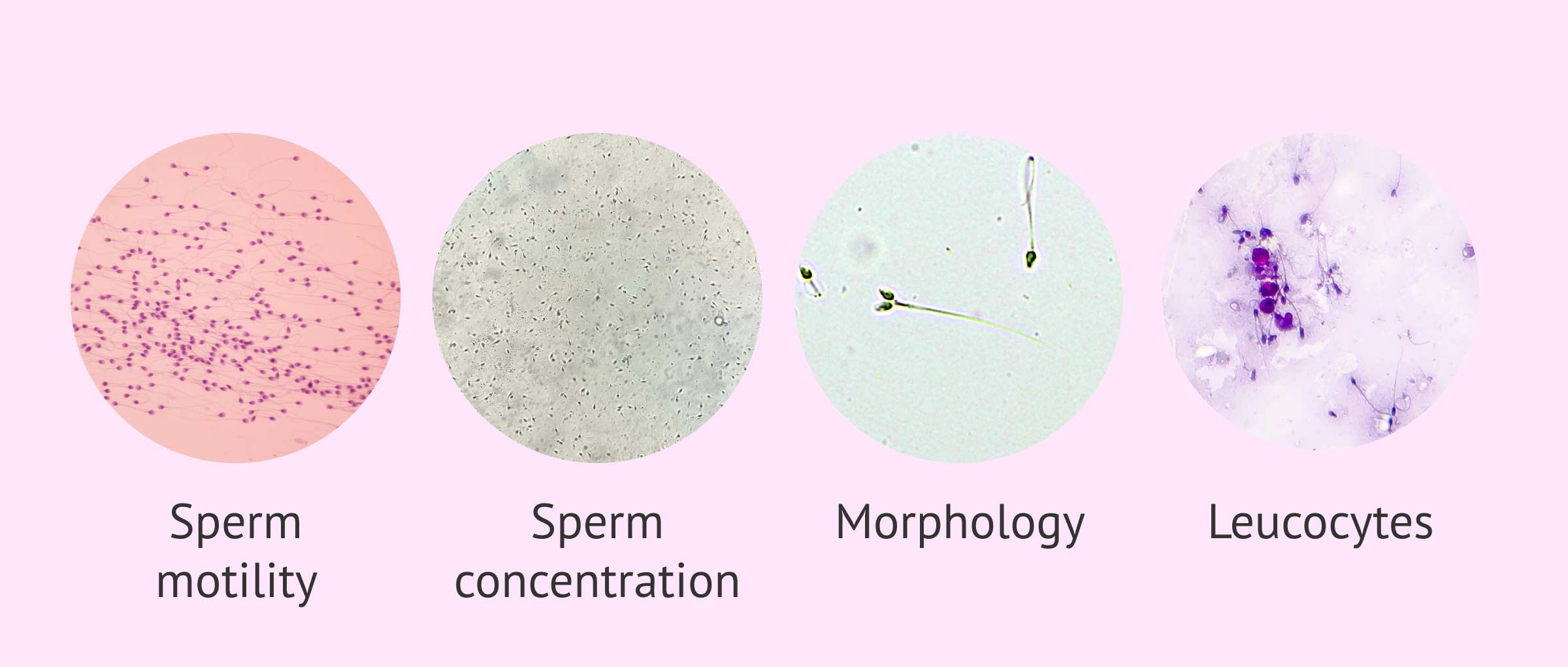 Microscopic parameters of a semen analysis