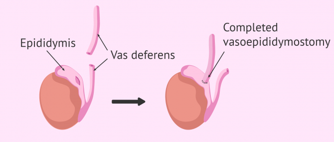Process of vasoepididymostomy