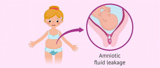 What Does Leaking Amniotic Fluid Feel Like? – Signs & Causes