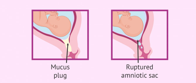 Mucus plug and water breaking