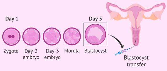 Culture to blastocyst: process day by day