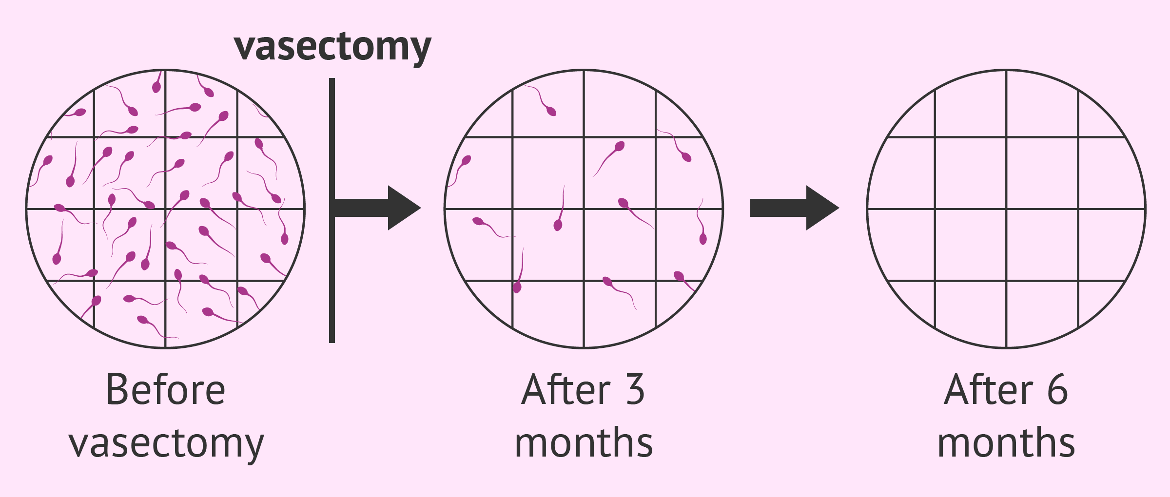 Getting sperm after vasectamy