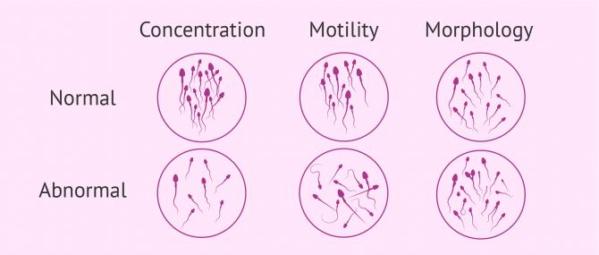 Semen analysis microscopic examination