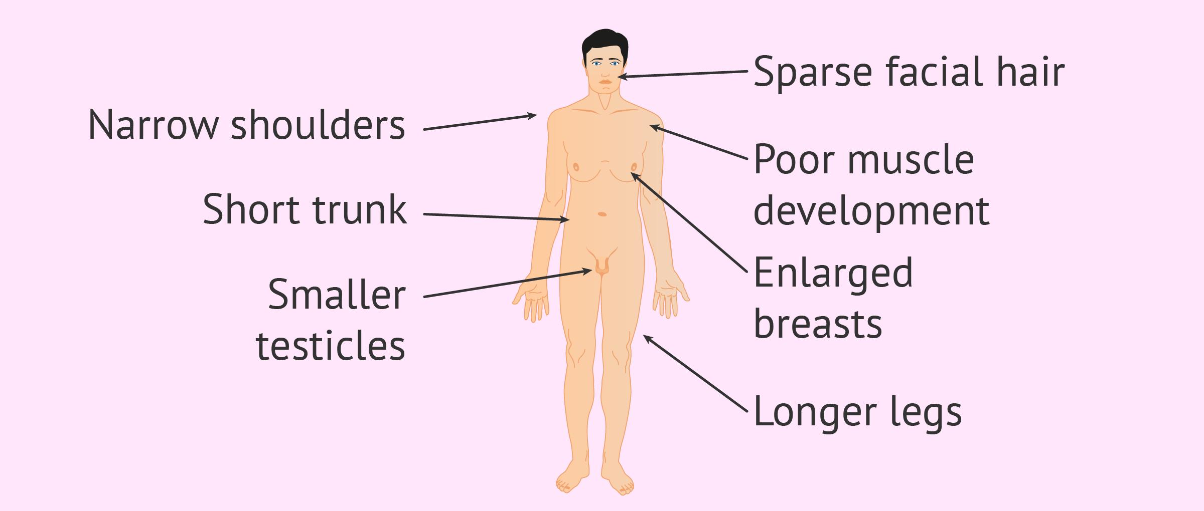 Characteristics of Klinefelter Syndrome