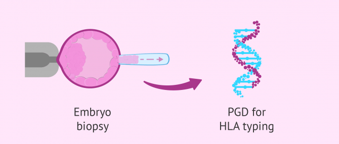 PGD for embryo selection