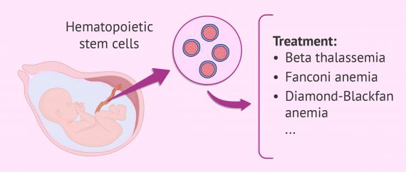 Savior sibling stem cell transplant