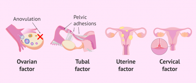 Imagen: Causes of female infertility