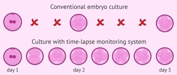 Conventional vs. time-lapse embryo culture