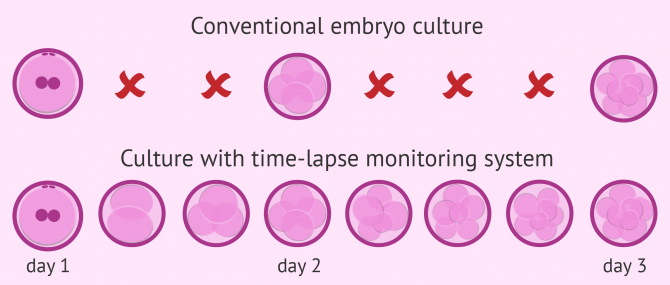 What Is Time-Lapse Technology in IVF? – Definition & Benefits