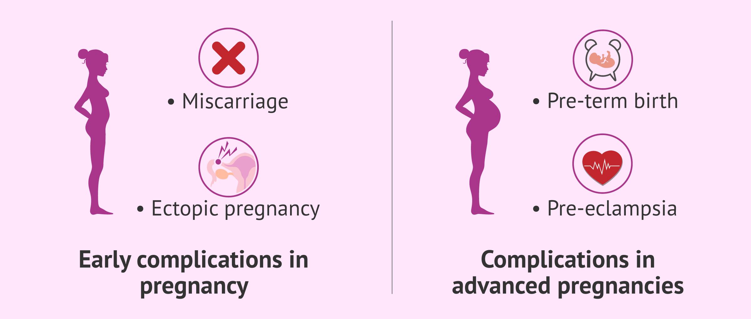 Imagen: Pregnancy complications due to endometriosis
