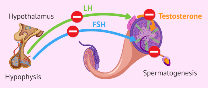 Imagen: Endocrine factor in male infertility