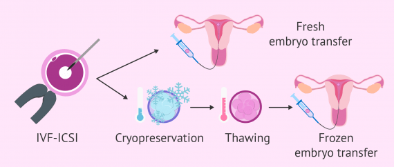 Fresh vs. frozen embryo transfer