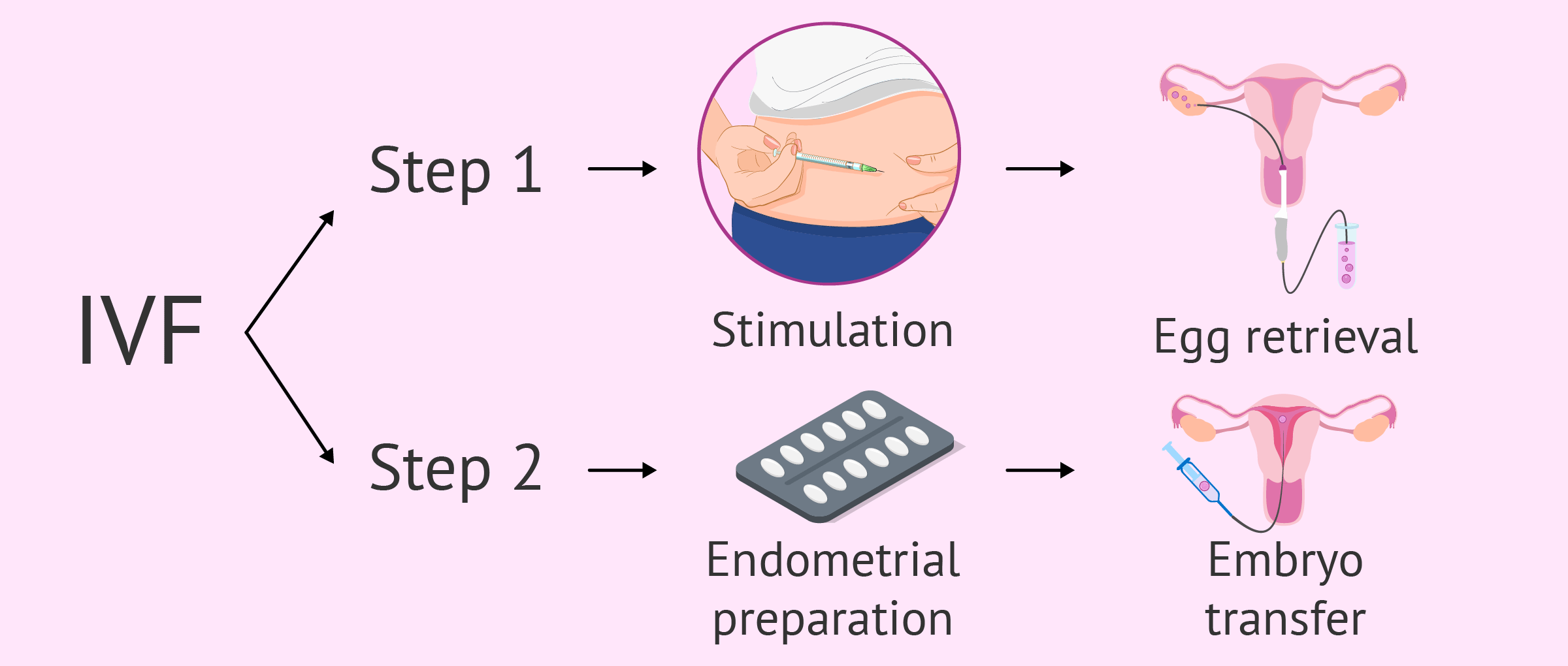 IVF procedure steps