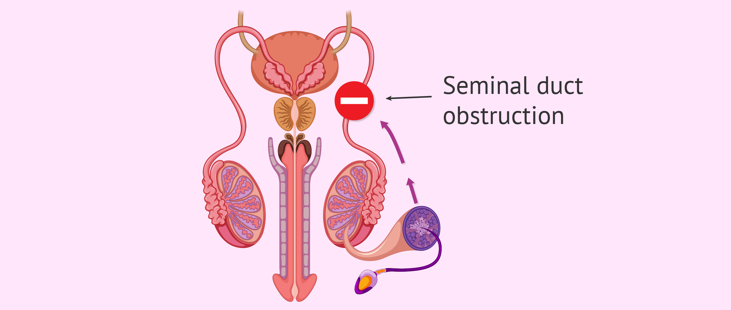 Post-testicular cause in male sterility