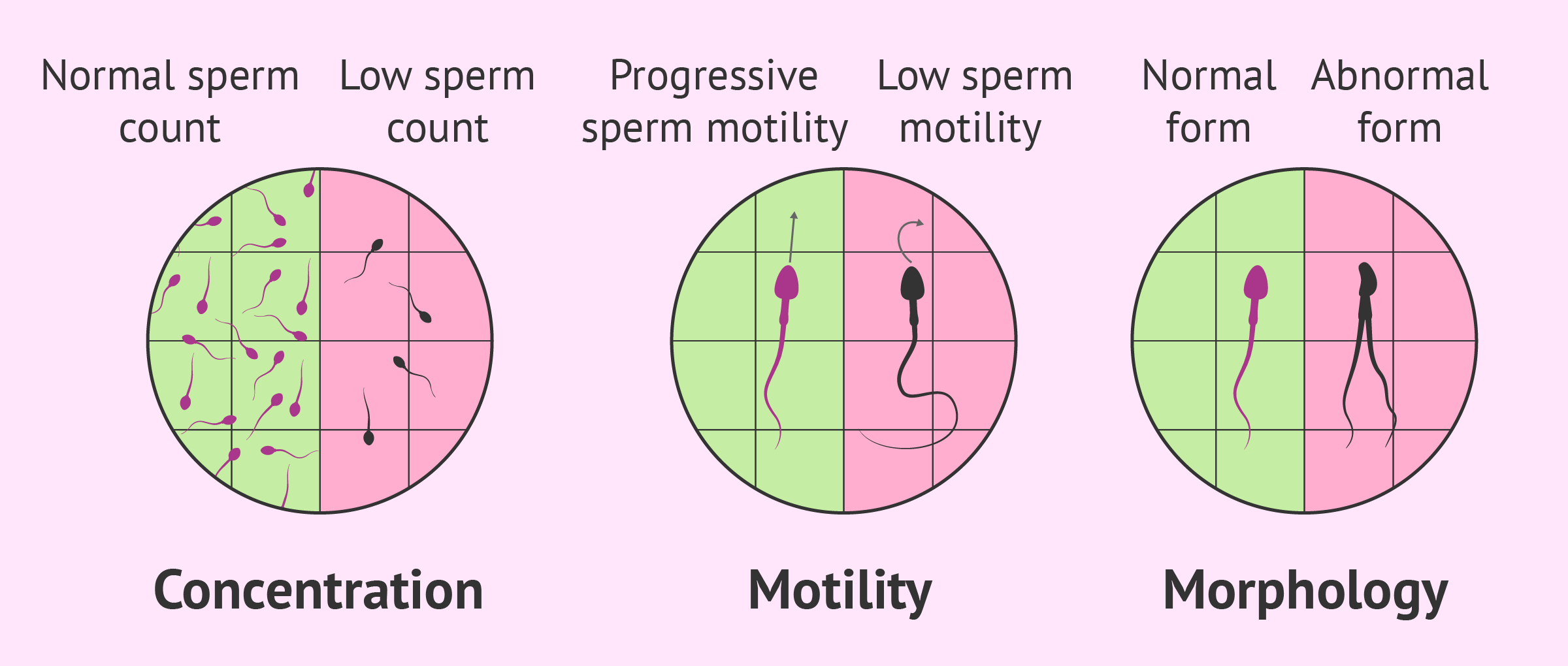 Sperm Abnormalities