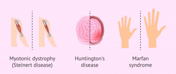 Common autosomal dominant genetic diseases