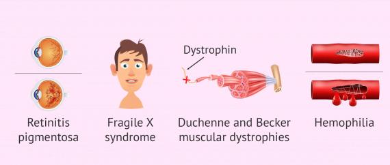 Gender related diseases