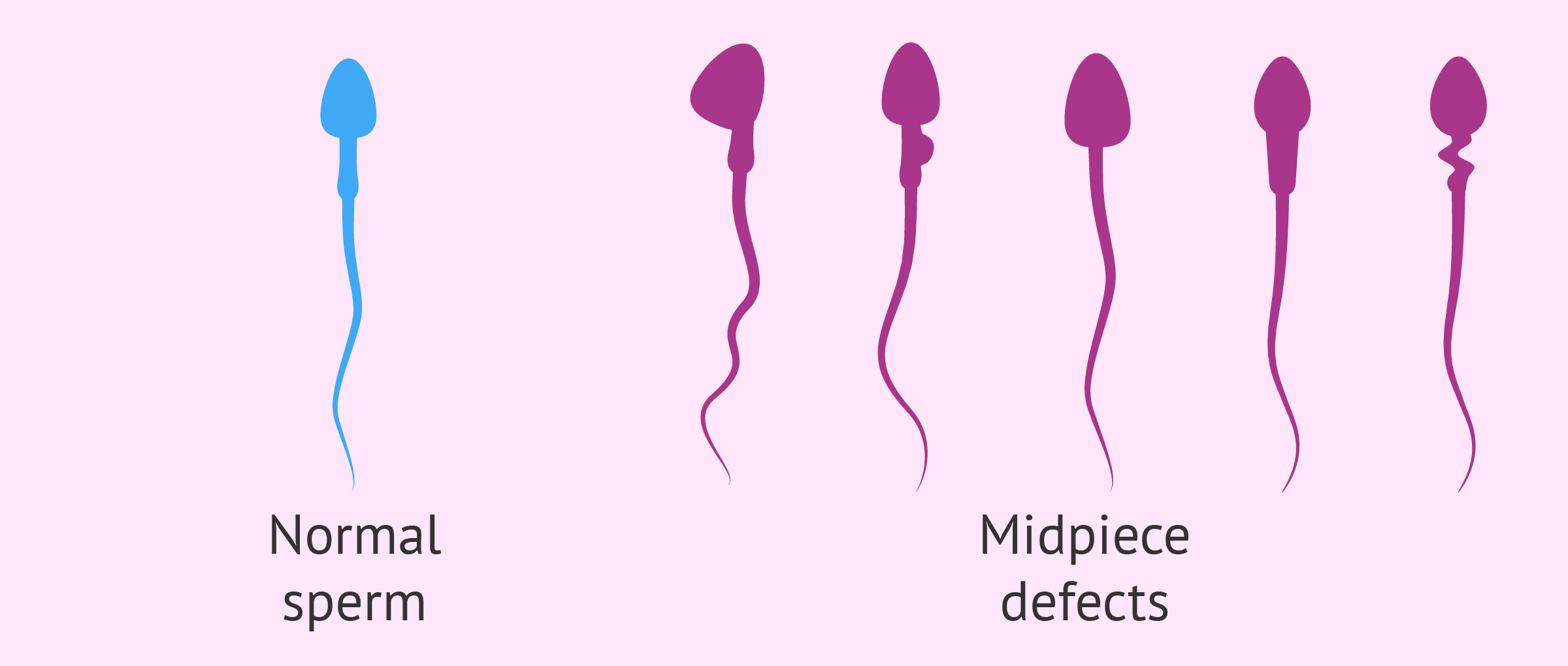 Midpiece defects in sperm