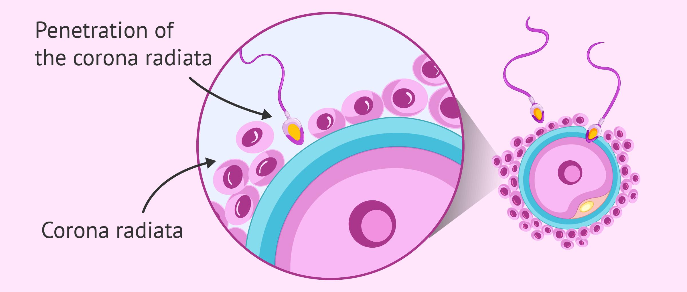 Penetration of the corona radiata