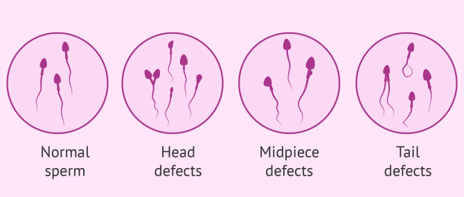 What Types of Sperm Morphological Defects Exist?