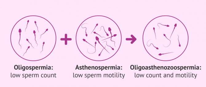 Oligoasthenozoopermia definition