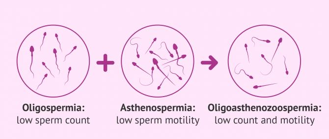 Oligoasthenozoopermia definition