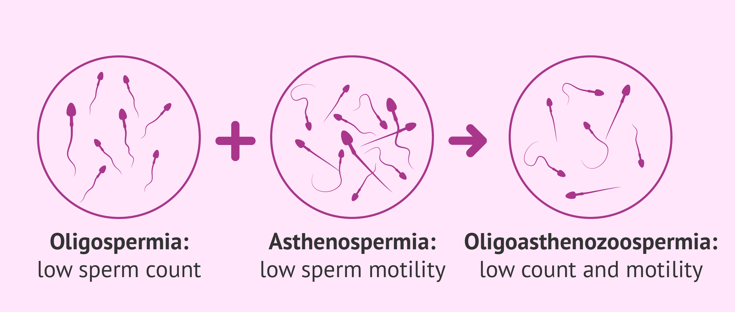 Definition of oligoasthenozoospermia