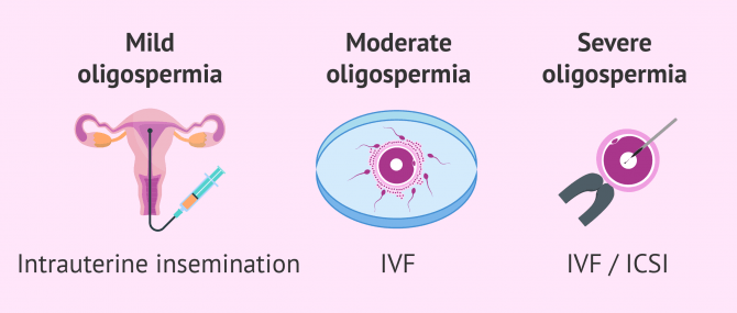 Assisted reproduction and oligospermia