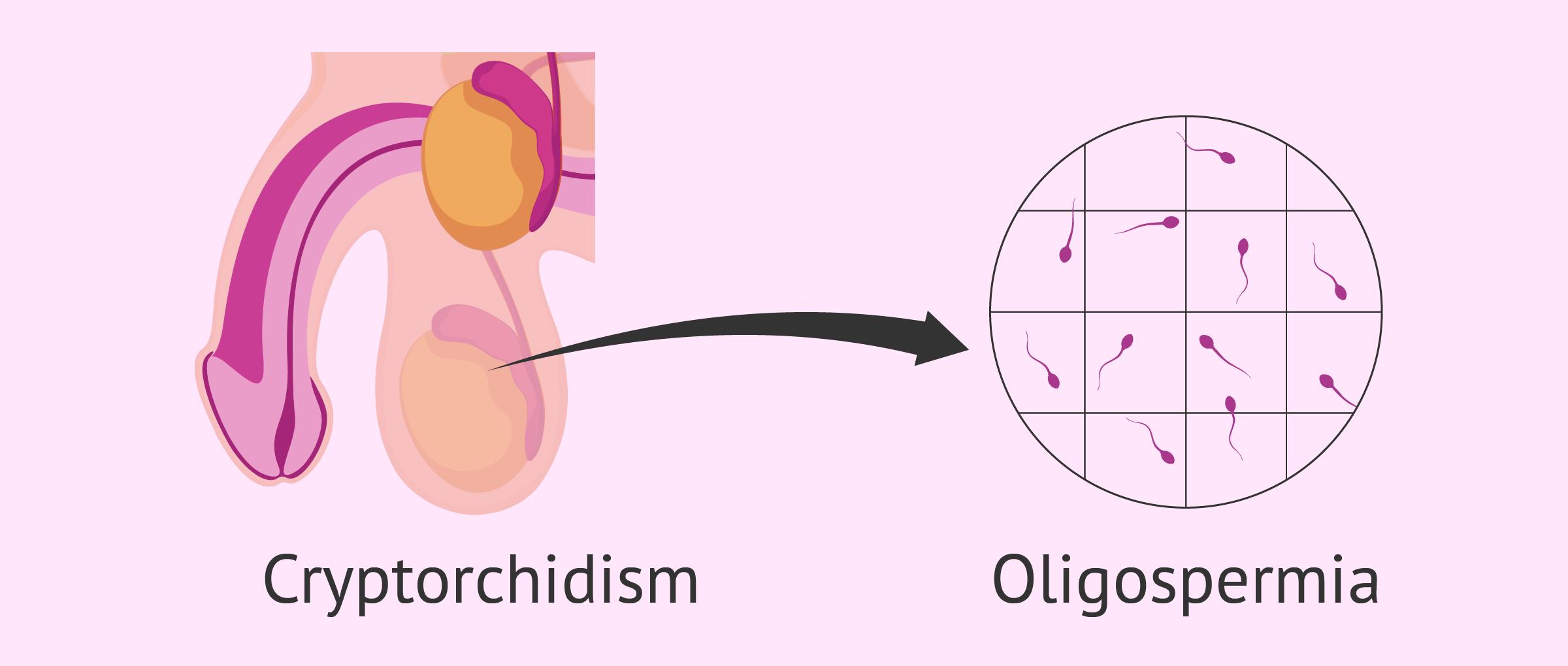 Cryptorchidism and oligospermia
