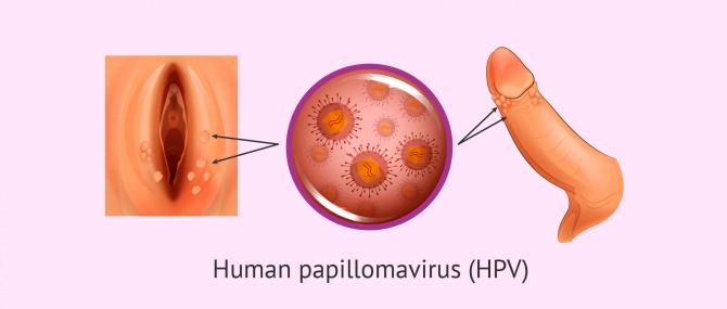HPV and genital warts