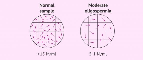 Normozoospermia vs. moderate oligozoospermia