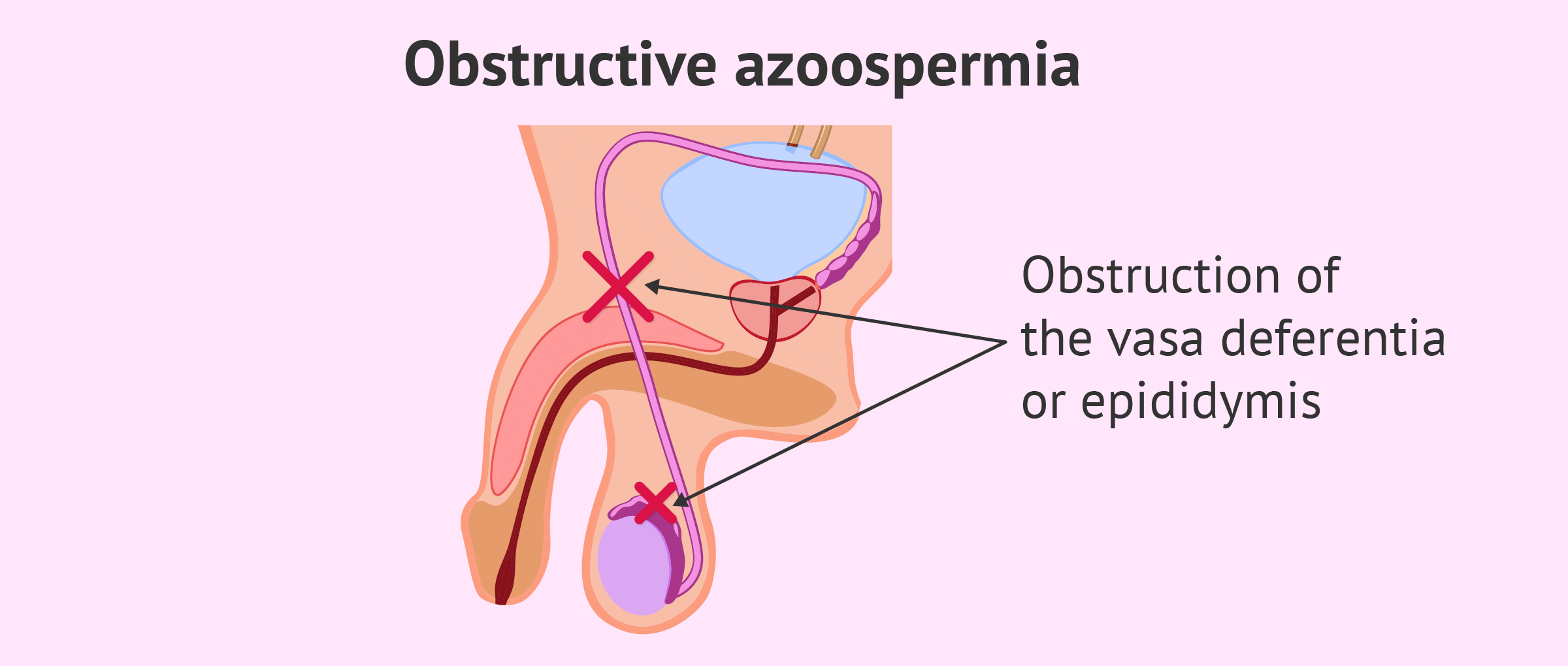 Obstructive azoospermia due to ejaculatory duct obstruction