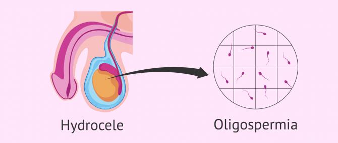 Oligozoospermia and hydrocele