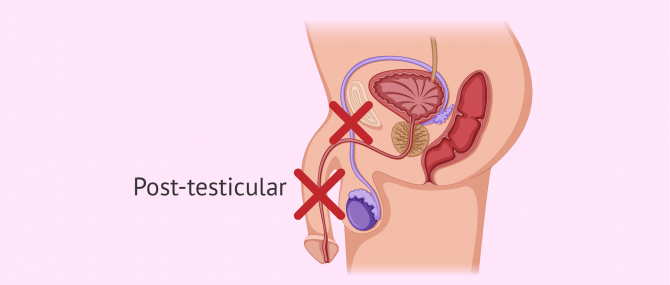 Post-testicular causes of azoospermia