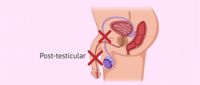 Post-testicular causes of azoospermia