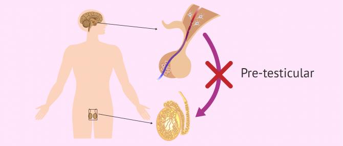 Pre-testicular causes of azoospermia
